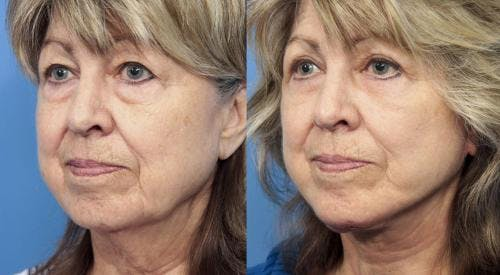 Face Lift Gallery - Patient 58213234 - Image 2