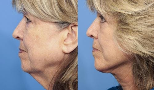 Face Lift Gallery - Patient 58213234 - Image 3