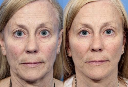 Face Lift Gallery - Patient 58213236 - Image 1