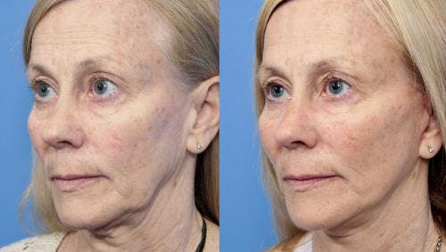 Face Lift Gallery - Patient 58213236 - Image 2