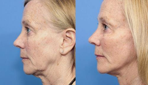Face Lift Gallery - Patient 58213236 - Image 3