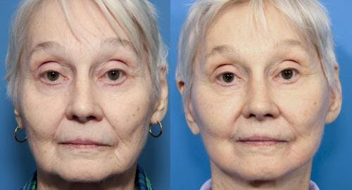 Face Lift Gallery - Patient 58213237 - Image 1