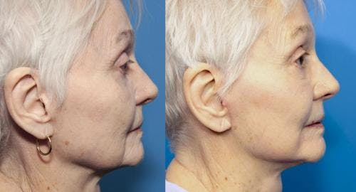 Face Lift Gallery - Patient 58213237 - Image 2