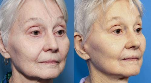 Face Lift Gallery - Patient 58213237 - Image 3