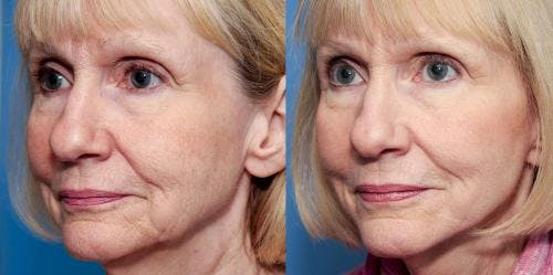 Face Lift Gallery - Patient 58213238 - Image 2