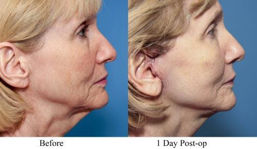 Face Lift Gallery - Patient 58213238 - Image 3