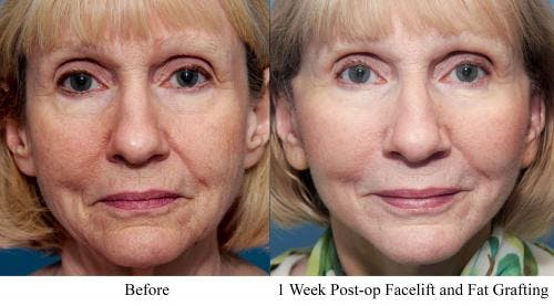 Face Lift Gallery - Patient 58213239 - Image 1