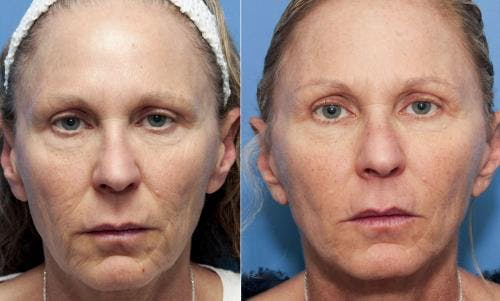 Face Lift Gallery - Patient 58213240 - Image 1