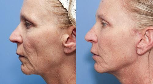 Face Lift Gallery - Patient 58213240 - Image 2