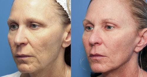 Face Lift Gallery - Patient 58213240 - Image 3