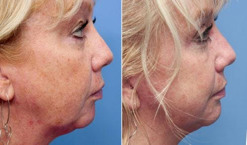 Face Lift Gallery - Patient 58213241 - Image 1