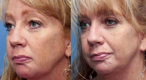 Face Lift Gallery - Patient 58213241 - Image 2