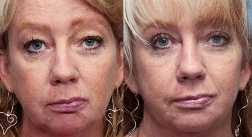 Face Lift Gallery - Patient 58213241 - Image 3