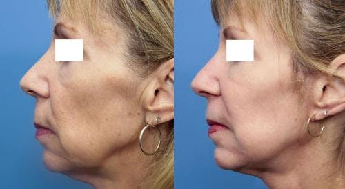 Face Lift Gallery - Patient 58213242 - Image 1