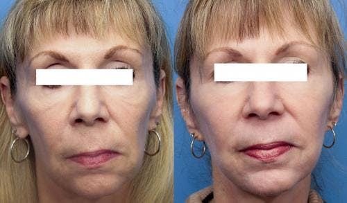 Face Lift Gallery - Patient 58213242 - Image 2