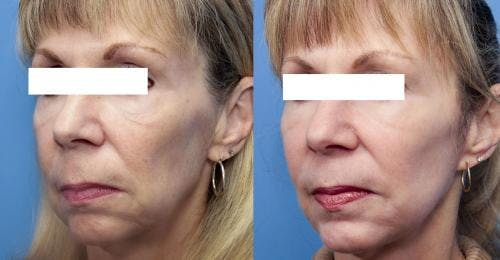 Face Lift Gallery - Patient 58213242 - Image 3