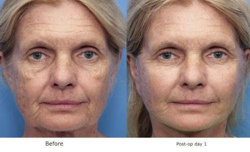 Face Lift Gallery - Patient 58213243 - Image 1