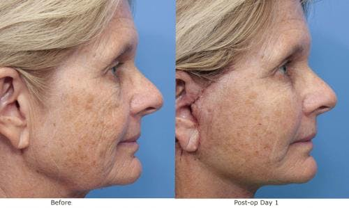 Face Lift Gallery - Patient 58213243 - Image 2