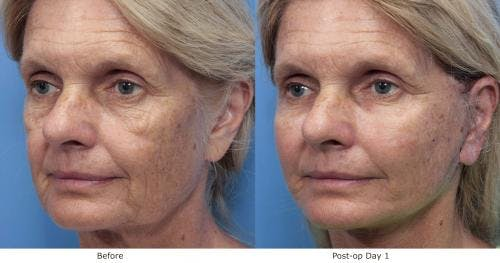 Face Lift Gallery - Patient 58213243 - Image 3
