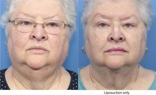Neck Lift Gallery - Patient 58213287 - Image 2
