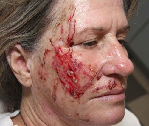 Scar Revision Gallery - Patient 58214147 - Image 1