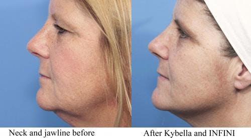Kybella Gallery - Patient 58214182 - Image 1