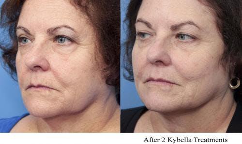 Kybella Gallery - Patient 58214184 - Image 3