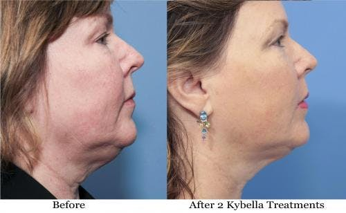 Kybella Gallery - Patient 58214186 - Image 1