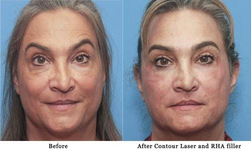 Facial Fillers Gallery - Patient 58214191 - Image 1