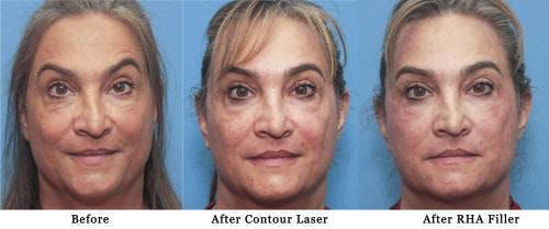 Facial Fillers Gallery - Patient 58214191 - Image 2