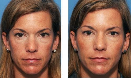 Facial Fillers Gallery - Patient 58214192 - Image 1