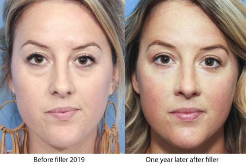 Facial Fillers Gallery - Patient 58214193 - Image 1