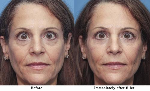 Facial Fillers Gallery - Patient 58214195 - Image 1