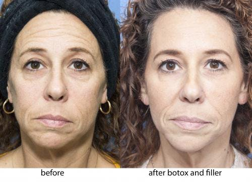 Facial Fillers Gallery - Patient 58214197 - Image 1