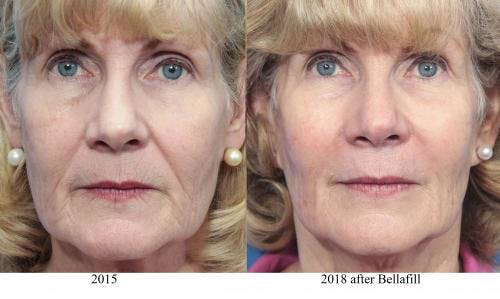 Facial Fillers Gallery - Patient 58214198 - Image 1