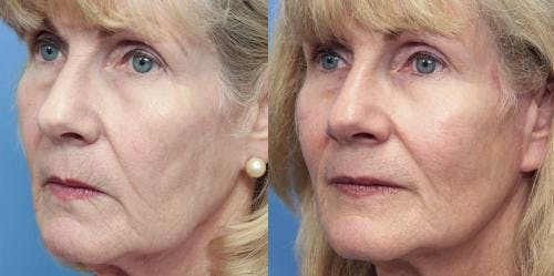 Facial Fillers Gallery - Patient 58214198 - Image 2