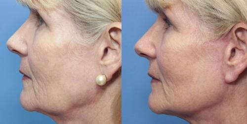 Facial Fillers Gallery - Patient 58214198 - Image 3