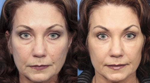 Facial Fillers Gallery - Patient 58214206 - Image 1