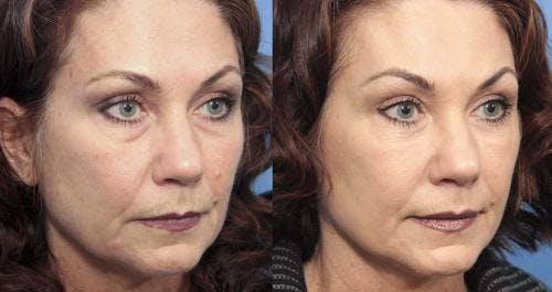 Facial Fillers Gallery - Patient 58214206 - Image 2