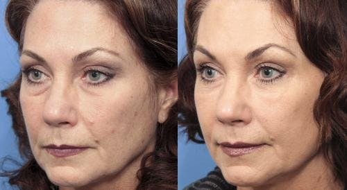 Facial Fillers Gallery - Patient 58214206 - Image 3