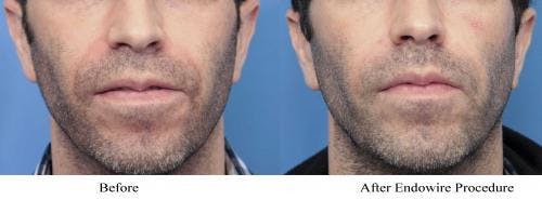 Facial Fillers Gallery - Patient 58214208 - Image 1
