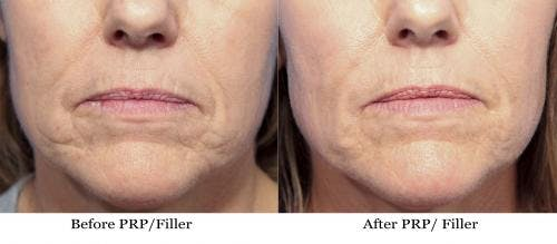 Facial Fillers Gallery - Patient 58214211 - Image 1