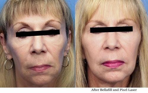 Facial Fillers Gallery - Patient 58214213 - Image 1