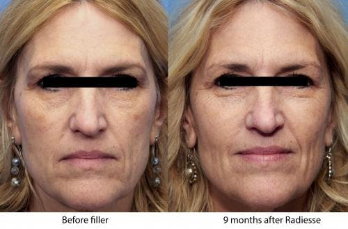 Facial Fillers Gallery - Patient 58214215 - Image 1