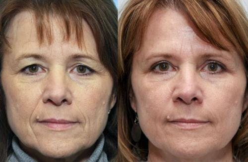 Facial Fillers Gallery - Patient 58214217 - Image 1