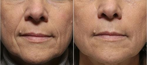 Facial Fillers Gallery - Patient 58214217 - Image 2