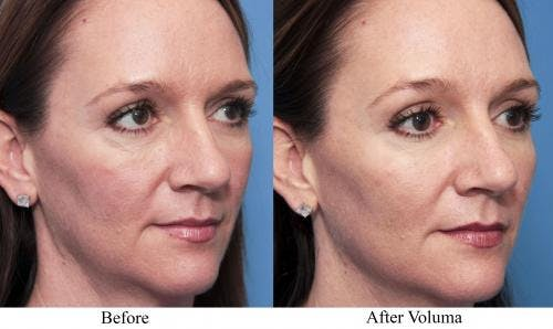 Facial Fillers Gallery - Patient 58214220 - Image 1
