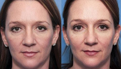Facial Fillers Gallery - Patient 58214220 - Image 2