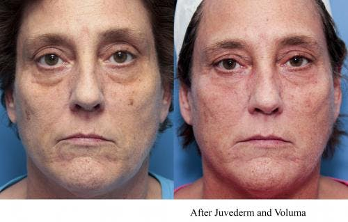 Facial Fillers Gallery - Patient 58214221 - Image 1