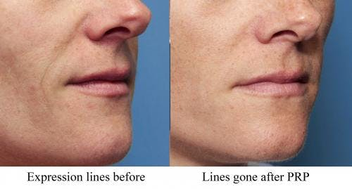 Facial Fillers Gallery - Patient 58214223 - Image 1